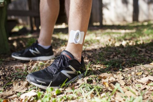Wireless TENS Unit on Ankle