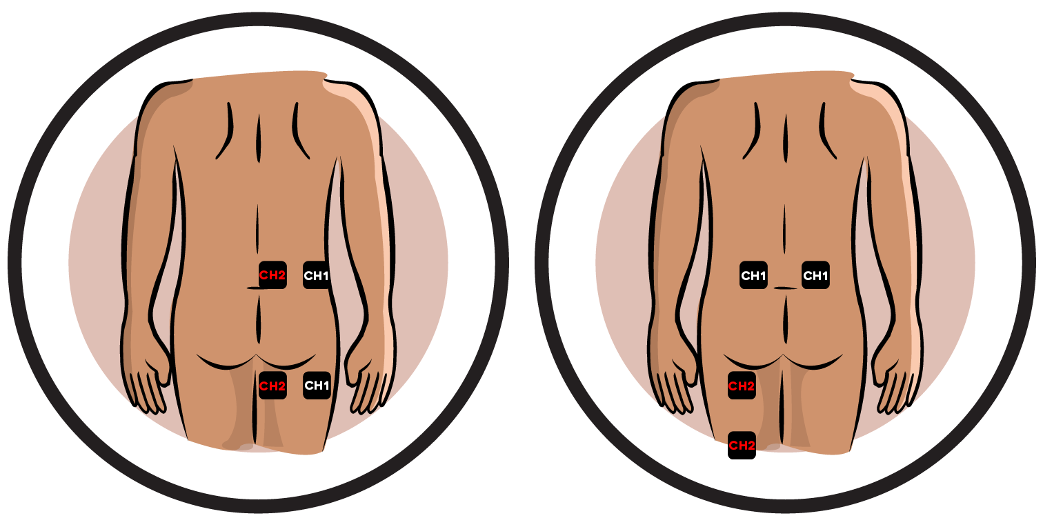 Sciatica Electrode Pad Placement