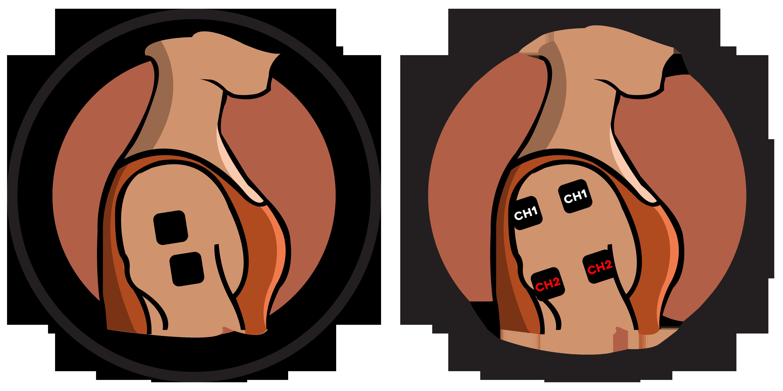 Shoulder Electrode Pad Placement