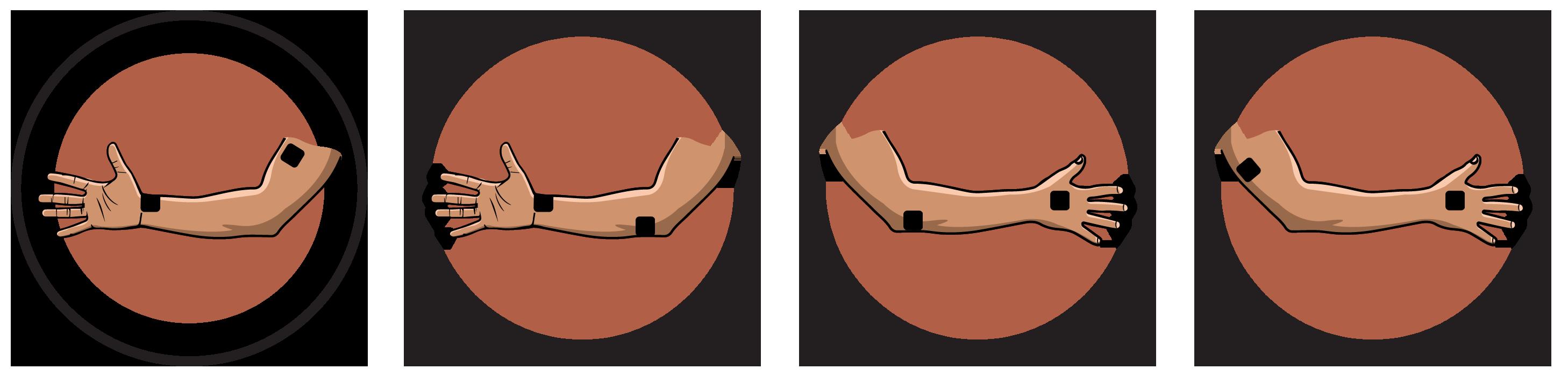 Ulnar Nerve Lesion Electrode Pad Placement