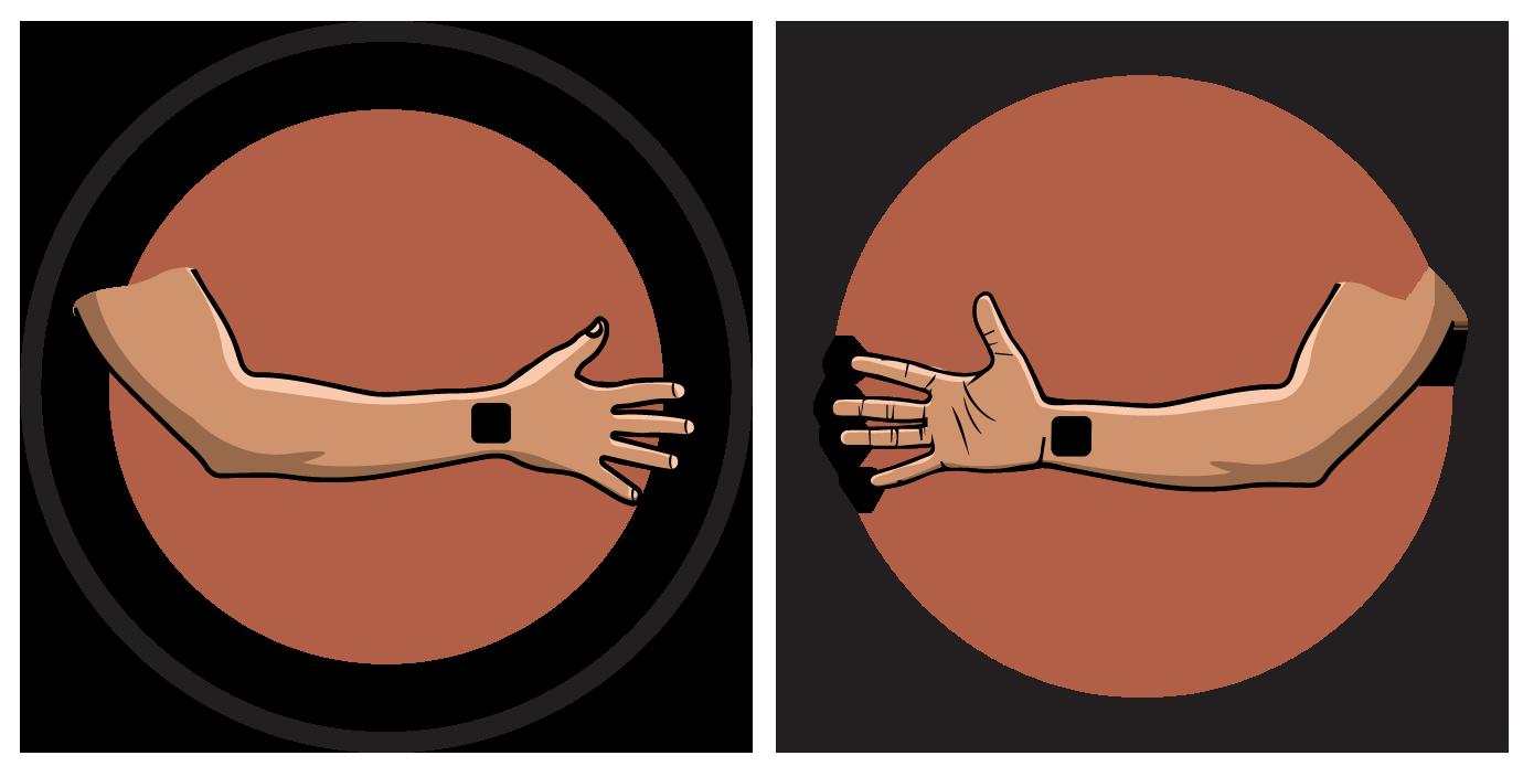 Flexor of Finger/Wrist Electrode Pad Placement
