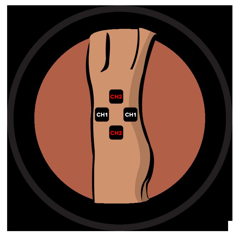 Hip Electrode Pad Placement
