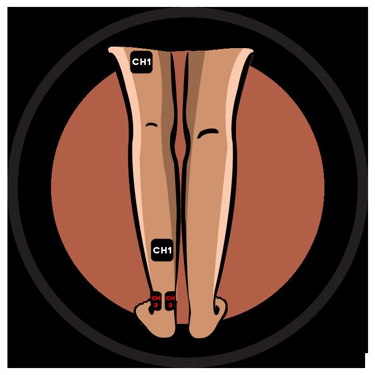 Diabetic Neuropathy Lower Leg Pain Electrode Pad Placement Full Leg